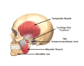 Temporomandibular Joint (TMJ) disorders